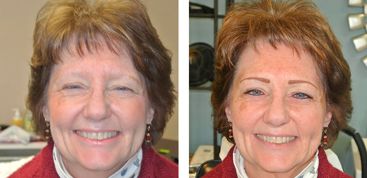 Before and After Photo - Permanent Cosmetics of Maryland